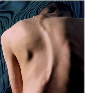 Scoliosis-Painful-but-treatable