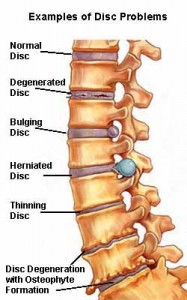 Herniated discs can cause pain