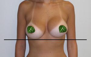 Breast implants causing lupus